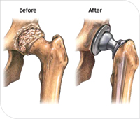 Hip Replacement or Hip Arthroplasty