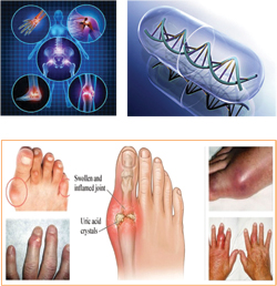 Diseases treated by rheumatologists
