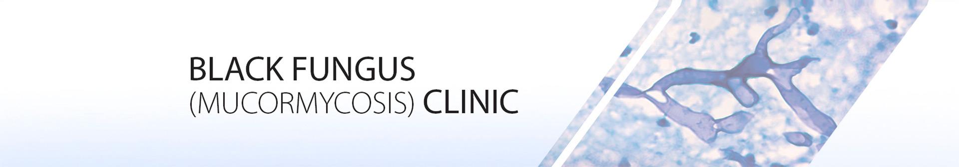 Black Fungus Clinic